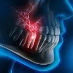 Dental Pain Nerve X-Ray